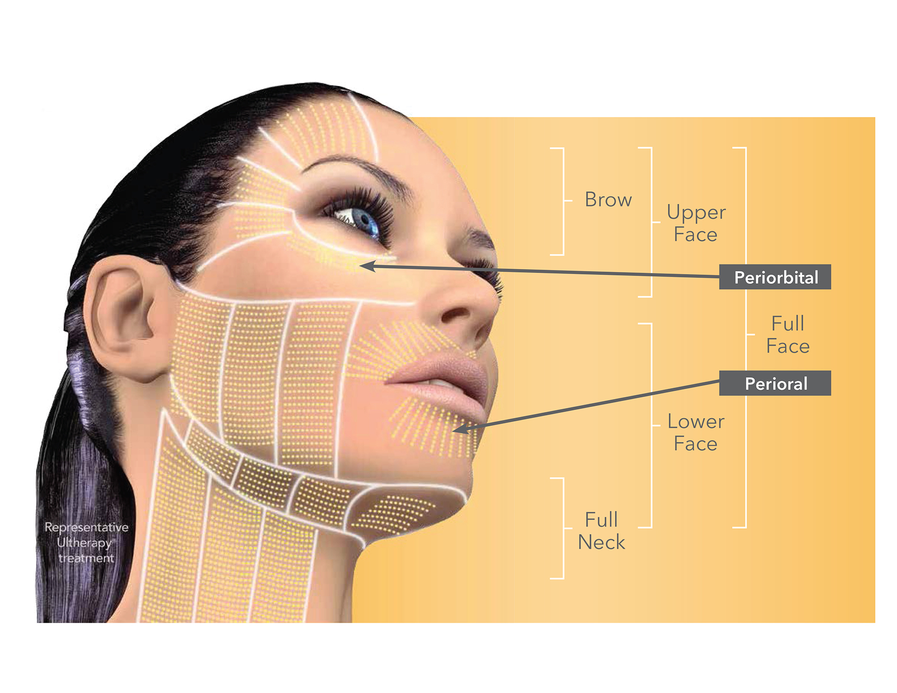 Ultherapy Areas of Treatment